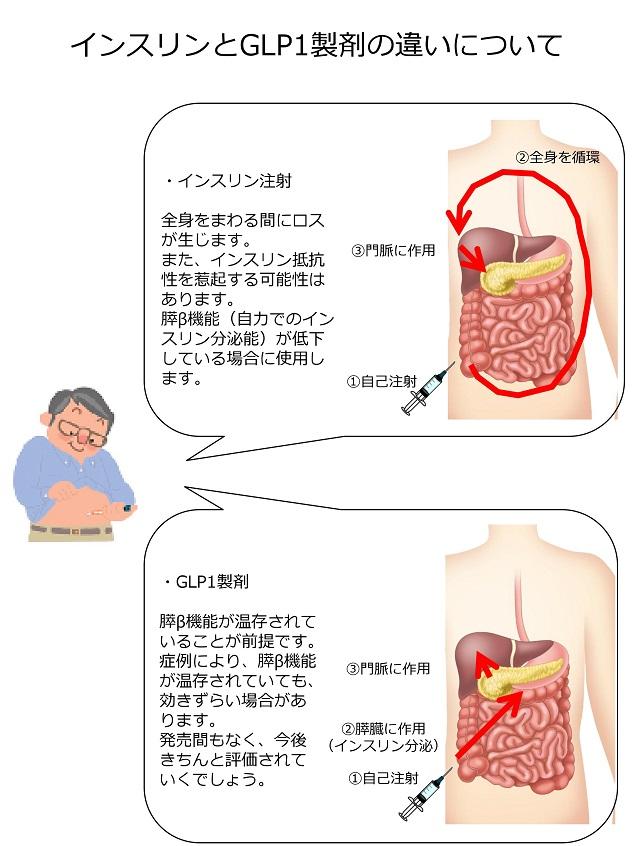 arteriosclerosis24.jpg