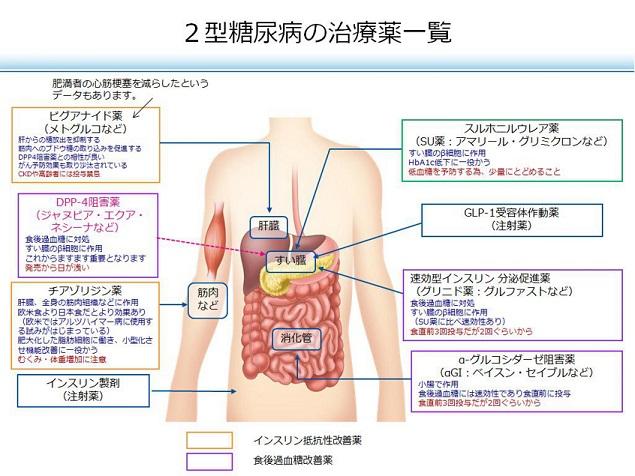 arteriosclerosis28.jpg