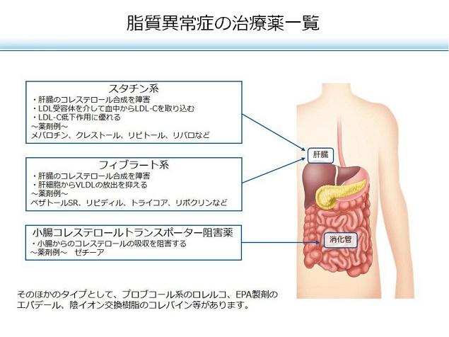 arteriosclerosis40.jpg